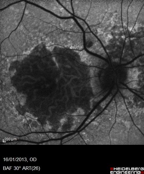 autofluorescenza in un caso di degenerazione maculare atrofica molto più grave ed evoluto