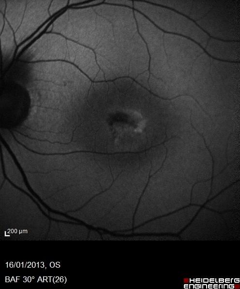 iperautofluorescenza in un caso di degenerazione maculare di tipo pseudovitelliforme