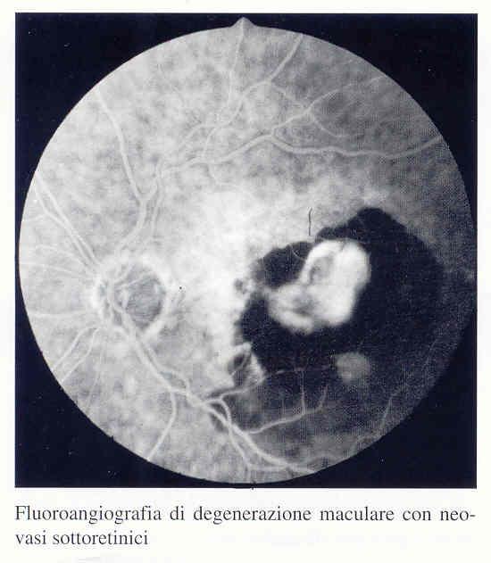 Fluroangiografia di degenerazione maculare con neovasi sottoretinici