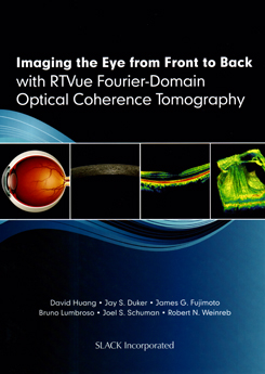 Imaging the eye from front to back