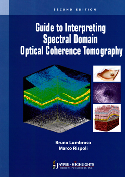 Guide to interpreting Spectral Domain Optical Coherence Tomographya