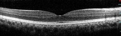 Immagine OCT spectral domain ad alta risoluzione di retina normale Bianco e nero