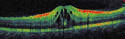 Immagine OCT spectral domain ad alta risoluzione di edema retinico cistoide