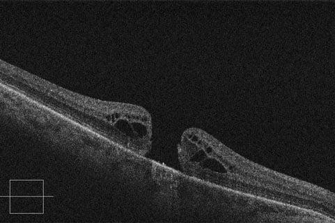 Mappa retinica spectral domain ad alta risoluzione in un caso di edema retinico cistoide