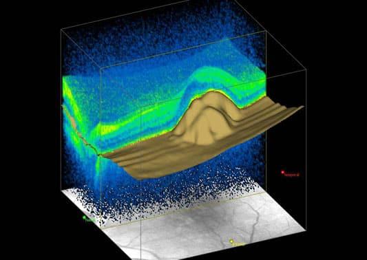 Immagine OCT spectral domain ad alta risoluzione di Foro retinico a tutto spessore