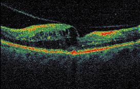 Esami OCT di un'occlusione venosa di branca